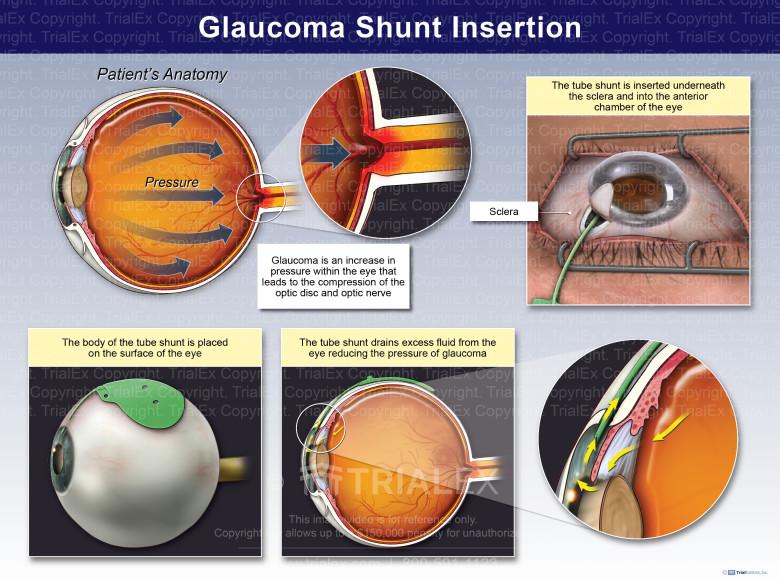 Glaucoma Shunt Insertion
