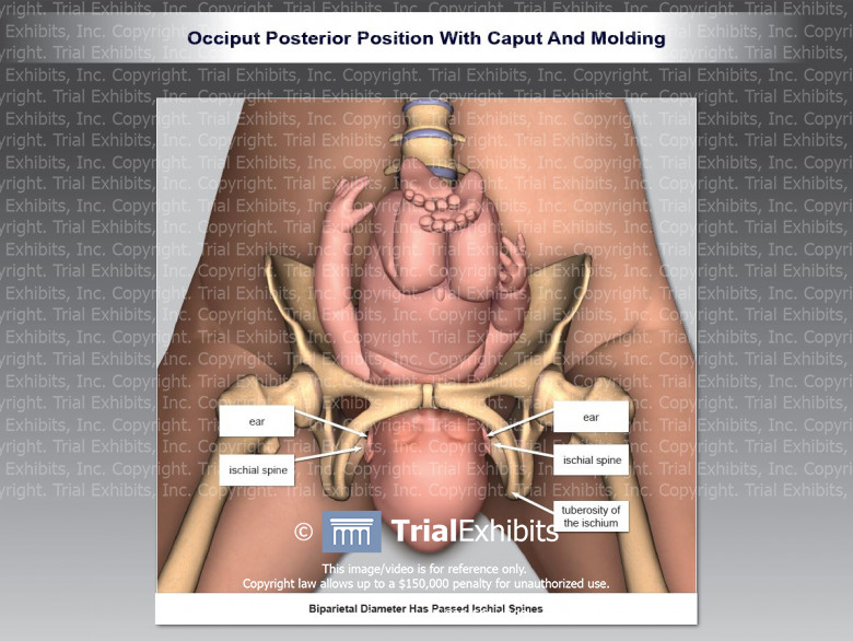 Occiput Posterior Position with Caput and Molding