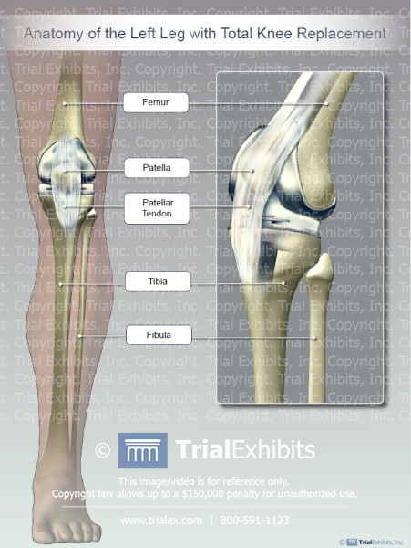 Library trial exhibits inc anatomy of the left leg with total knee replacement ccuart Choice Image