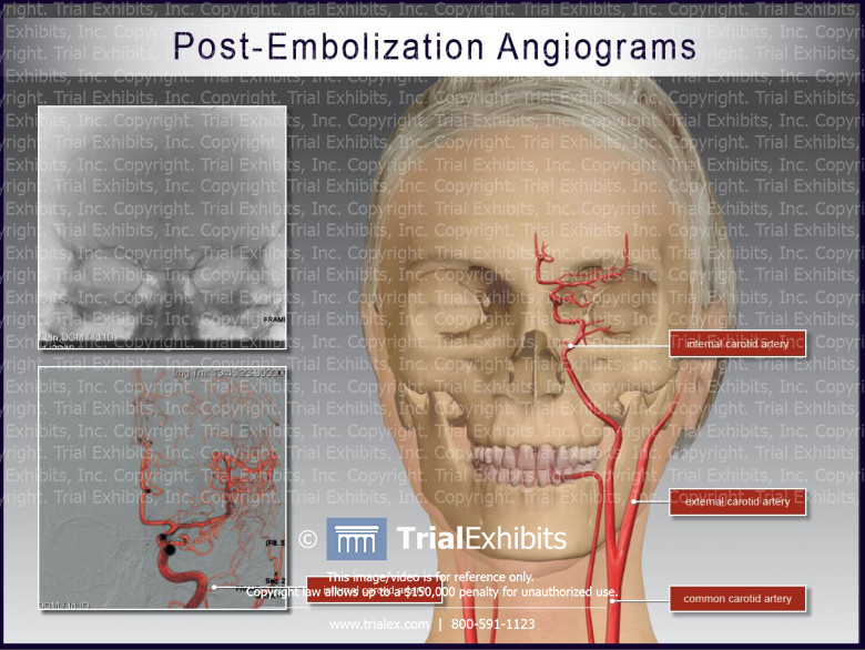 Post-Embolization Angiograms
