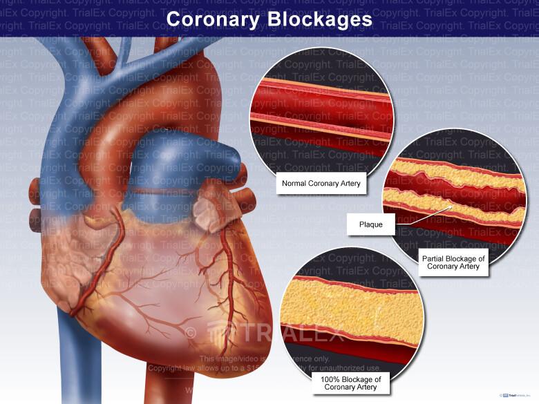 Coronary Blockages