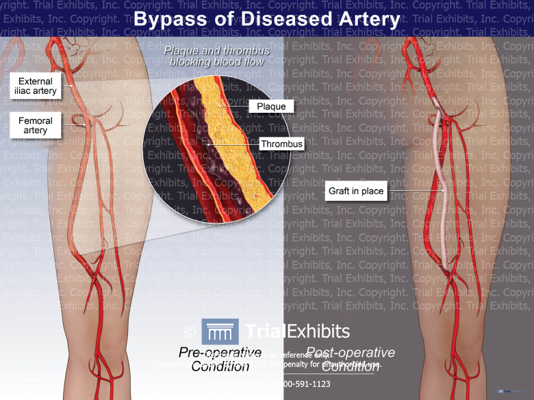 Bypass of Diseased Artery