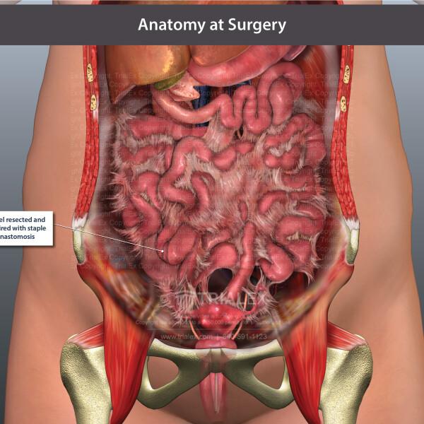 bowel resection and anastomosis